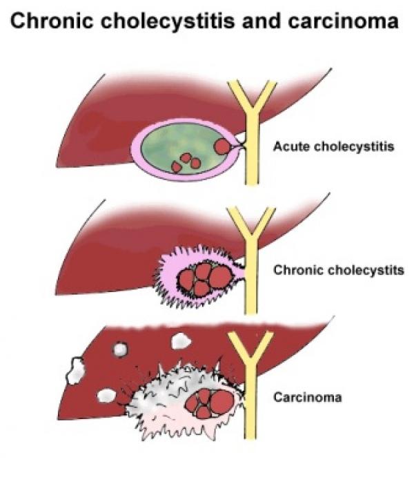 Лечение рака желчного пузыря в клинике Доктор Кредо