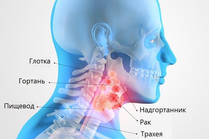 рак горла лечение в клинике Доктор Кредо